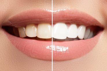 שיניים לפני ואחרי טיפול הלבנה