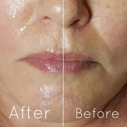 תמונת לפני אחרי טיפול פנים